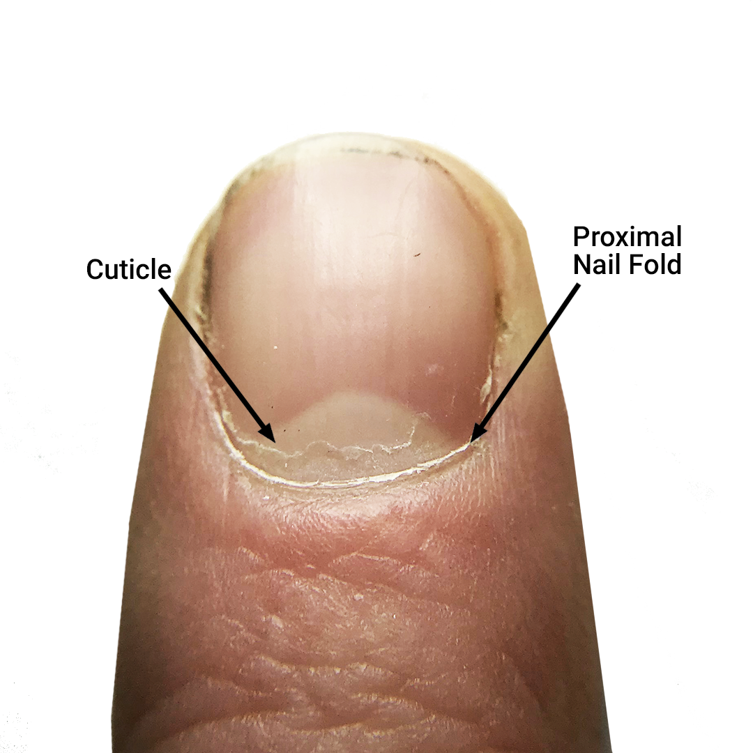 The Cuticle – Should You Clip, Push, or Scrape? - Bliss Kiss