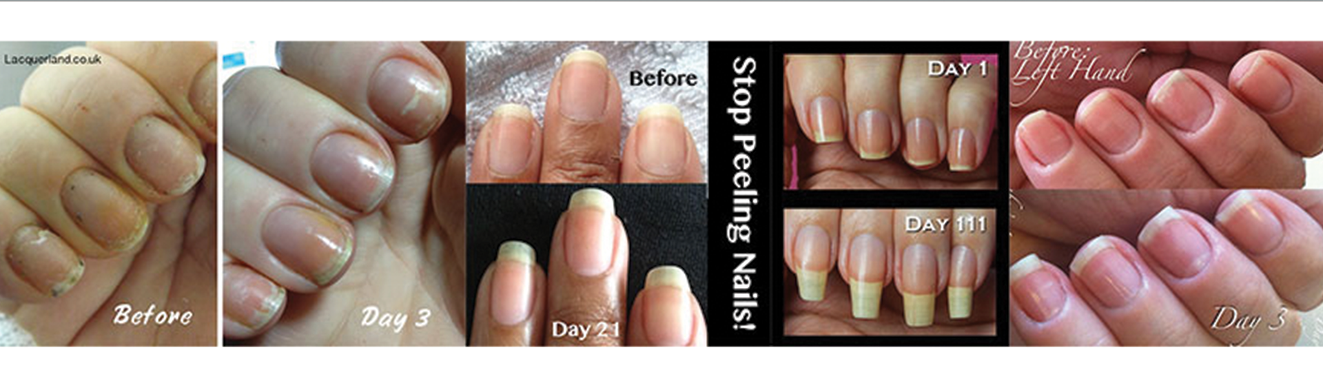 gnc-nails-before-and-after.png
