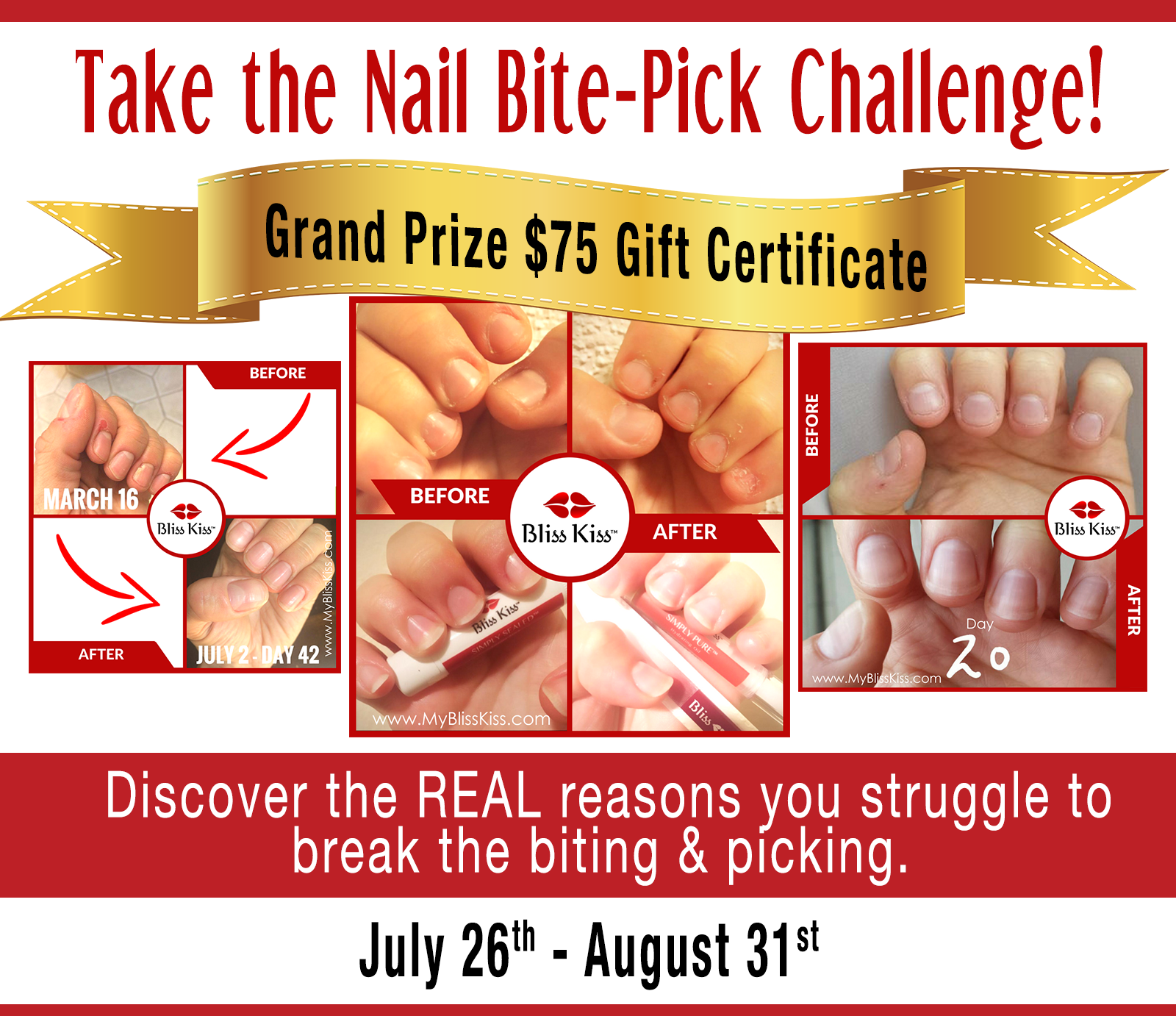 nail-bite-pickchallenge.png